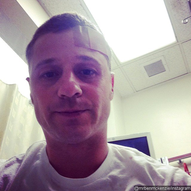 ben-mckenzie-injures-head-on-gotham-set